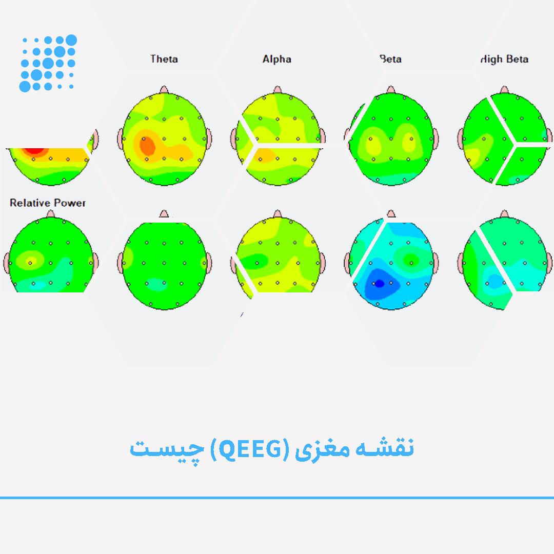 sarmadtec Sarmad tec خرید دستگاه EEG نقشه مغزی QEEG دستگاه نوروفیدبک خرید دستگاه نوروفیدبک دستگاه QEEG دستگاه روانپزشکی تشخیص ADHD تشخیص autism تشخیص اتیسم EEG