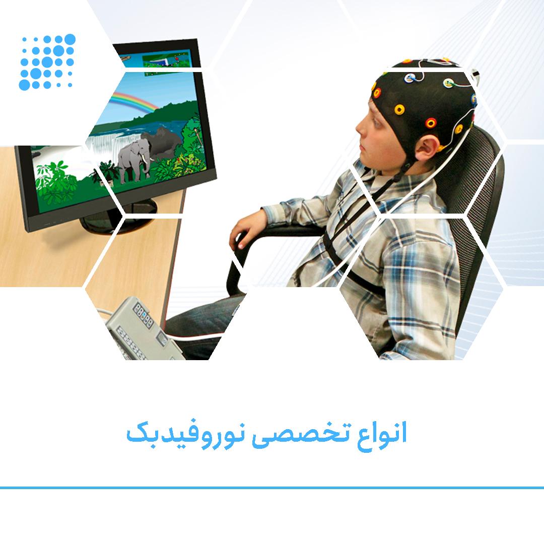 174x60-Sarmadtec-mynew-سرمد-تک-دستگاه-نوروفیدبک-نقشه-مغزی-QEEG-دستگاه-EEG-خرید-دستگاه-EEG.png